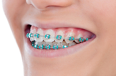 Southern Dental Specialists orthodontics metal braces